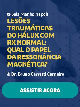 Aula #48 - Lesões traumáticas do hálux com RX normal: qual o papel da ressonância magnética?