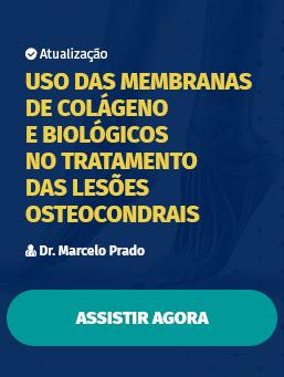Aula #43 - Uso das membranas de colágeno e biológicos no tratamento das Lesões Osteocondrais